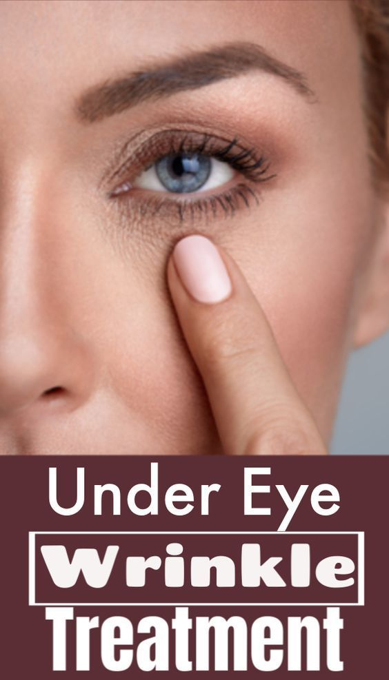 You Should Definitely Try Some Home Remedies For Wrinkles Under Eyes Before Heading To A Do Home Remedies For Wrinkles Under Eye Wrinkles Eye Wrinkles Remedies