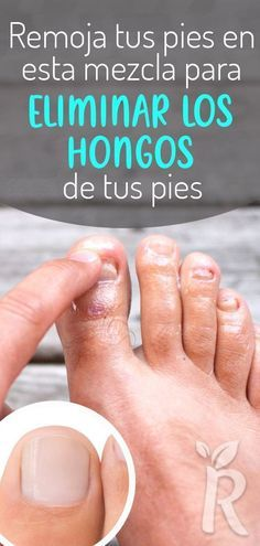 3 Remedios Caseros Para Eliminar Los Hongos En Las U Ntilde As De Los Pies In 2020 Body Skin Condition And Treatment Beauty Treatments Beauty Care