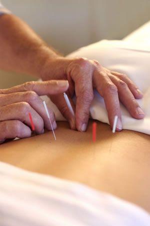 Acupuncture Visits for Theumathoid Arthritis