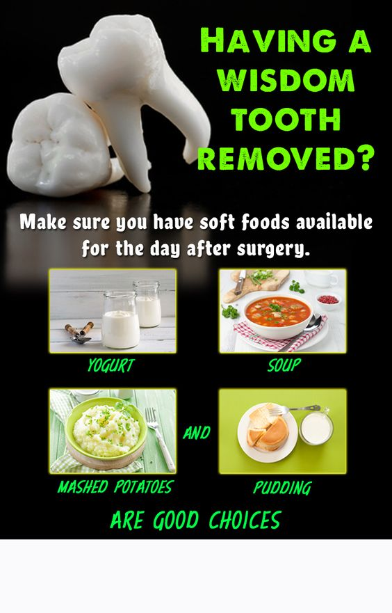 Foods To Eat When You Get Your Wisdom Teeth Removed Food I M Sure Eating Soft After