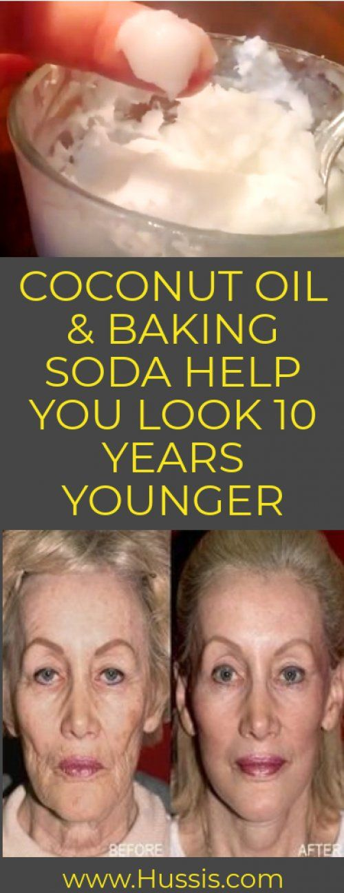 COCONUT OIL & BAKING SODA HELP YOU LOOK 10 YEARS YOUNGER #skincaretips #skin #skincare