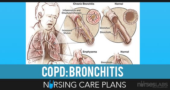 COPD: Bronchitis Nursing Care Plans | Nursing Care Plan, Nursing Care