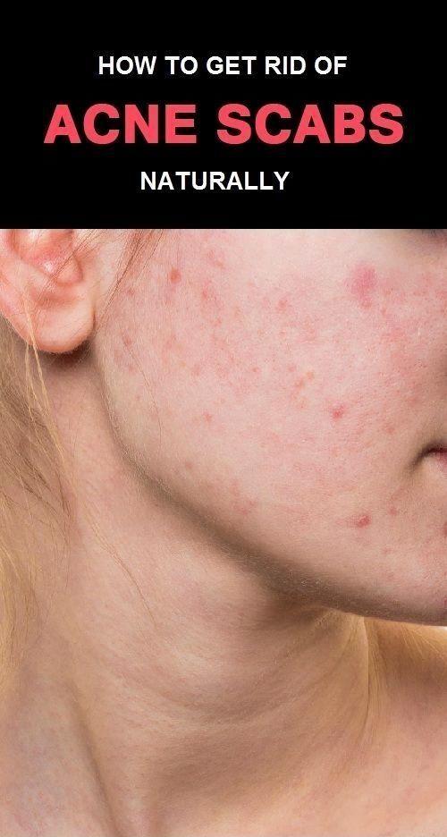 2d611d8a61602ccf9fd889efe563889c - How To Get Rid Of Pimple Marks On Back