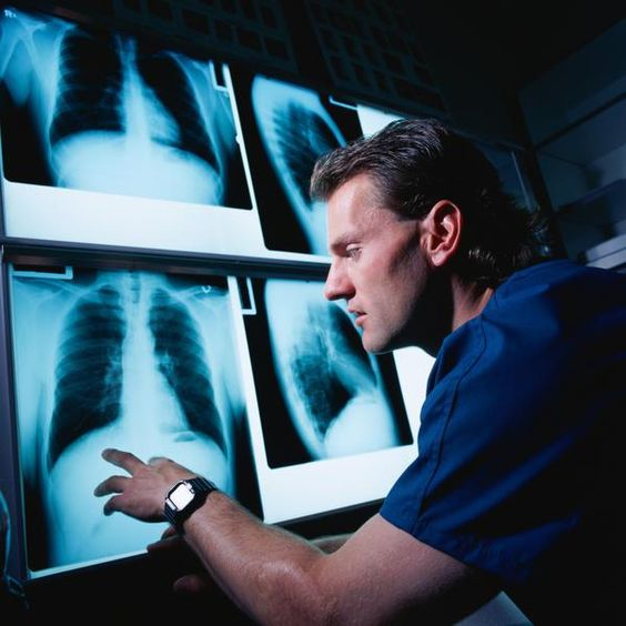 person looking at xray