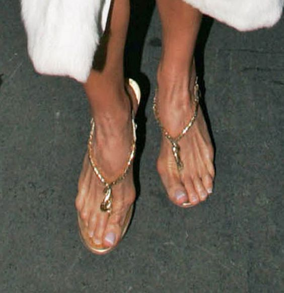 ... feet, like so many women, her feet and toes have taken on the shape of