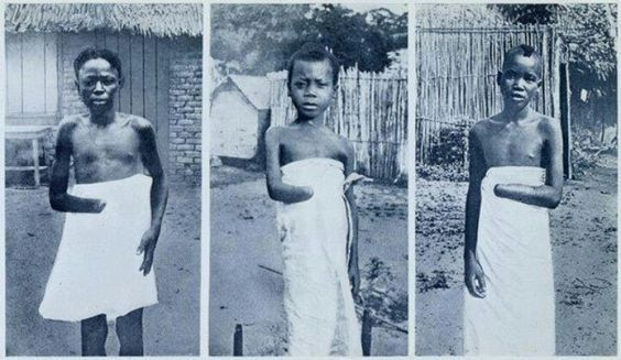 Under King Leopold II, the state of Belgium murdered 10 million Africans in Congo, academics have yet to call this genocide. As retaliation against communities that had not met their quota in rubber plantions. The Belgians, KING LEOPOLD II cut off the hands of adults and children. Following an outcry at the barbarity of the situation, the Belgium Parliament stop KING LEOPOLD OF BELGIUM from CONGO.