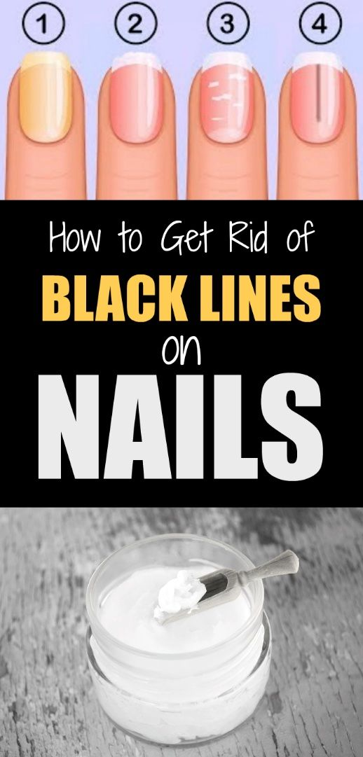 How To Get Rid Of Black Lines On Nails Causes And Easy Natural Remedies Lines On Nails Black Lines Under Nails Nails