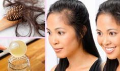 Em outros posts, já falamos o quanto os cabelos são importantes para a nossa aparência.As mulheres, principalmente, tendem a dedicar muito tempo para arrumar os cabelos antes de sair.Por isso, quem sofre com quedas de cabelo costuma ter a autoestima muito baixa.