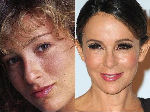 Jennifer Grey Plastic Surgery Before And After Photos #celebrities #jennigergrey #fashion #health #glamour #popular #women #entertainment #hollywood #nosejob