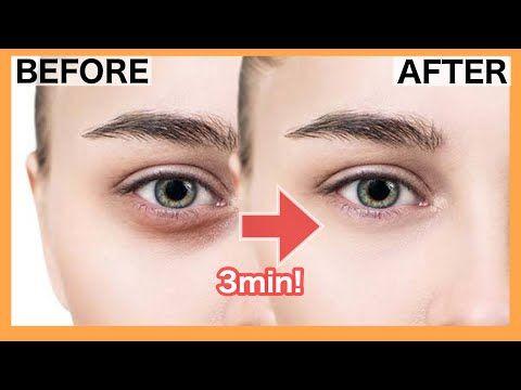 Get Rid Of Dark Circle Under Eye Eye Bags With This Massage Exercise Youtube Dark Circles Under Eyes Dark Eye Circles Dark Circles