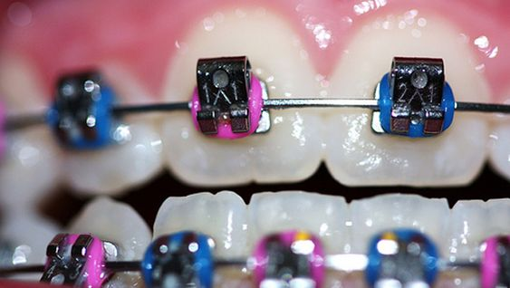 how to choose braces color