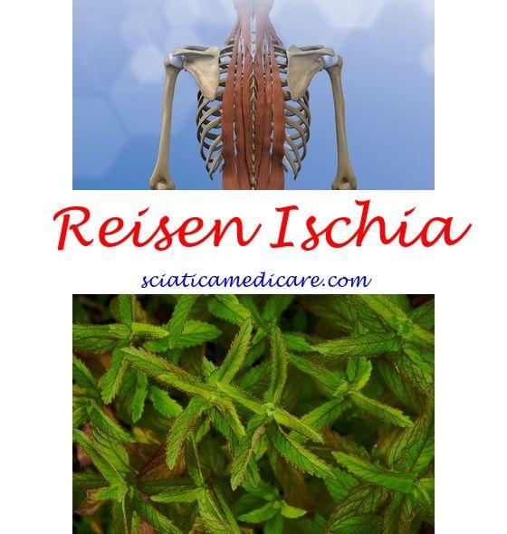 Ischia Karte Ischias Ischiasschmerzen Und Ischias Symptome