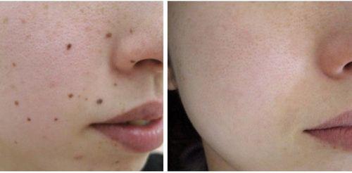 Mole Removal In Dubai Laser Eye Surgery Cost Mole Removal Skin Care Treatments