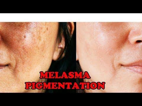 2f0d18c3a857ed9feace8fec7ad2beda - How To Get Rid Of Post Inflammatory Hyperpigmentation Naturally