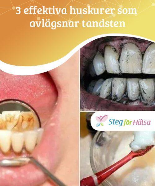 kan man få bort tandsten själv