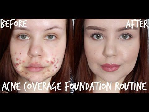 How To Cover Up Acne 7 Life Saving Tutorials Thefashionspot Akne Foundation Routine Zystische Akne