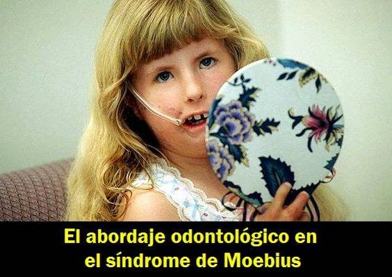 El abordaje odontológico en el síndrome de Moebius   OVI Dental