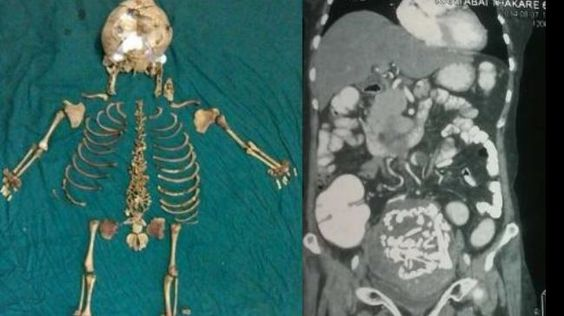 Doctors remove 36-year-old skeleton inside Indian woman
