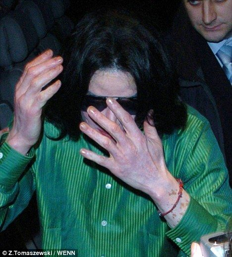 Michael Jackson always maintained he was blighted by a rare skin disease called vitiligo.    And it seems his eldest son, Prince Michael may be suffering from the same problem.
