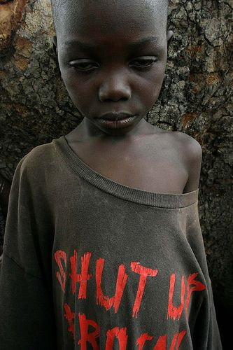 A malnourished boy in CAR, by hdptcar - CC BY-SA 2.0