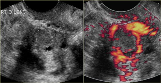 WK 4 L 2 A corpus luteum may seal and fill with fluid or blood, forming a corpus luteum cyst. The transvaginal ultrasound images show a small complex ovarian cyst with wall vascularity on power Doppler analysis. The characteristic circular Doppler appearance is called the 'ring of fire'. Note, there is good through-transmission and no internal vascularity, consistent with a, partially involuted, corpus luteum cyst.