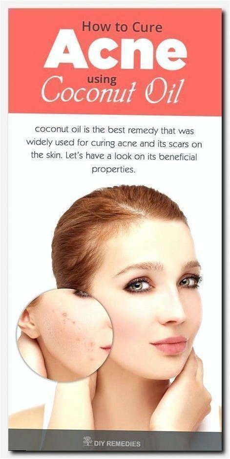 Simple Steps To Follow To Get Rid Of Acne Health And Skin Care Coconut Oil For Acne Acne Cure Oils For Skin
