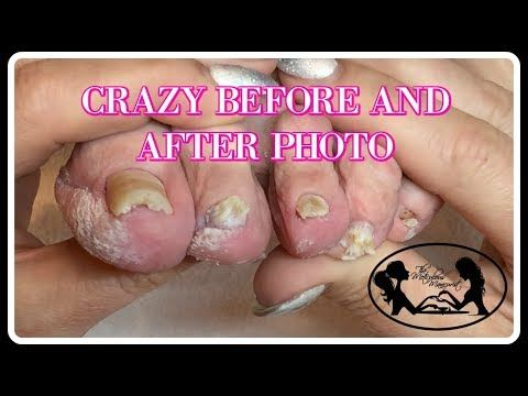 Follow Up Tutorial Elderly Nail Fungus By The Meticulous Manicurist Main Channel Nail Fungus Treatment Nail Fungus Natural Nail Fungus Treatment