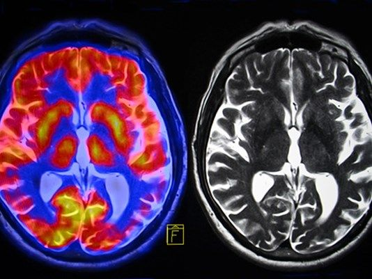 CDC: Child cancer rates down but brain cancers now most deadly among them - http://www.freshcancernews.com/cdc-child-cancer-rates-down-but-brain-cancers-now-most-deadly-among-them/