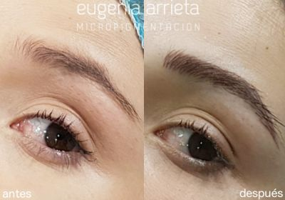 Casos reales de micropigmentación estética (labios, ojos y cejas), capilar y médica, realizados en el centro de Eugenia Arrieta Micropigmentación.