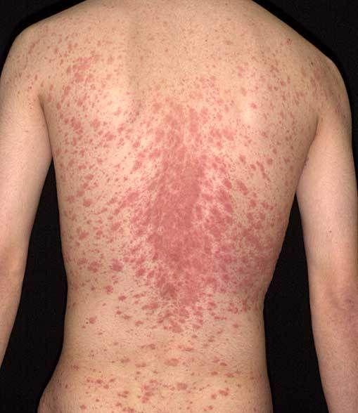 Pityriasis Rosea Skin Rash Photos Search