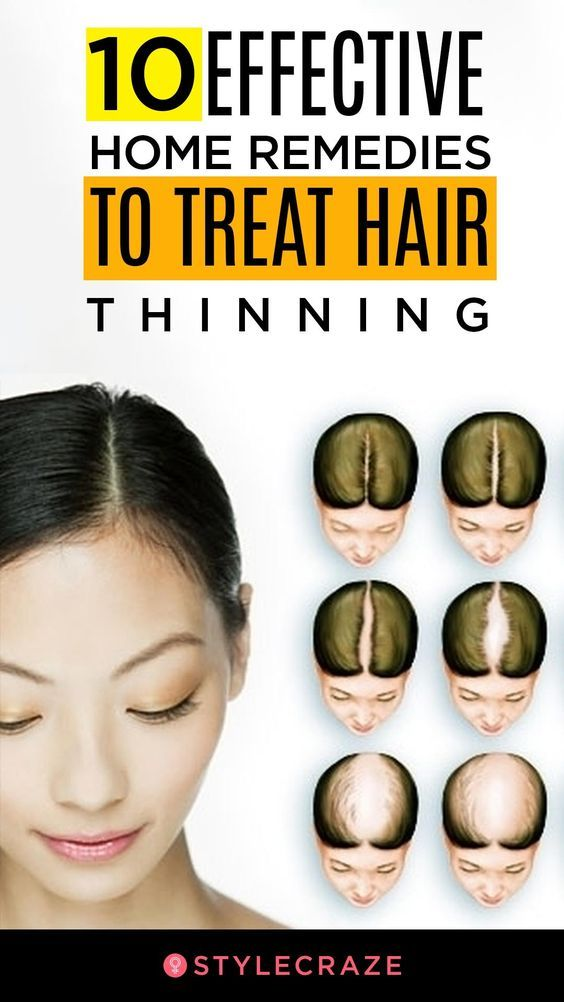 10 Home Remedies And Prevention Tips To Treat Thinning Hair Thin Hair Care Treat Thinning Hair Home Remedies For Hair