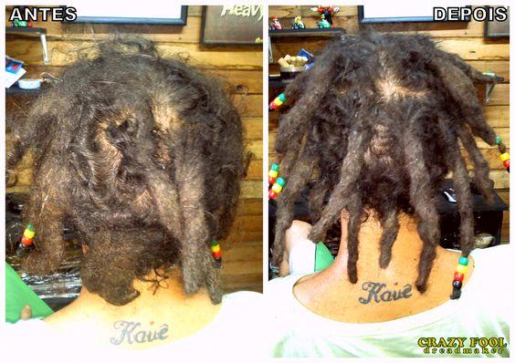Salvando mais uma cabeleira. Primeira manutenção nos dreads de Willyans, já fazendo total diferença