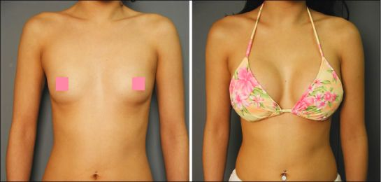 Pin On 500cc Breast Implants