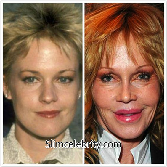 Wow - what happened. Melanie Griffith.: