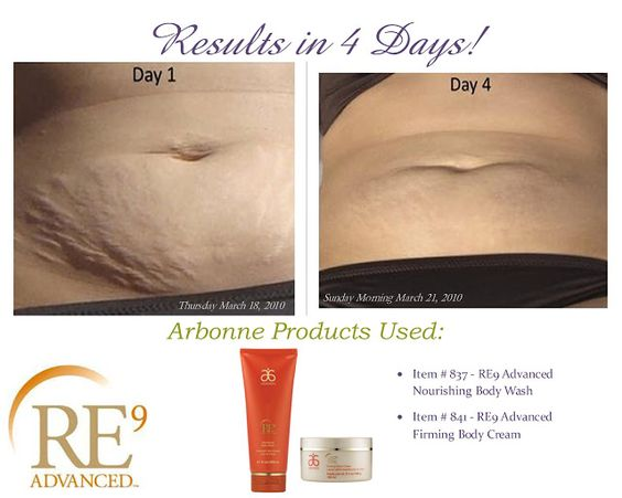 arbonne before and after pictures | AMAZING BEFORE AND AFTER PHOTOS: