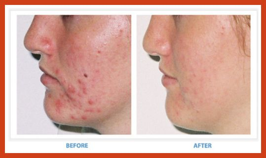 for acne treatment Alternative adult