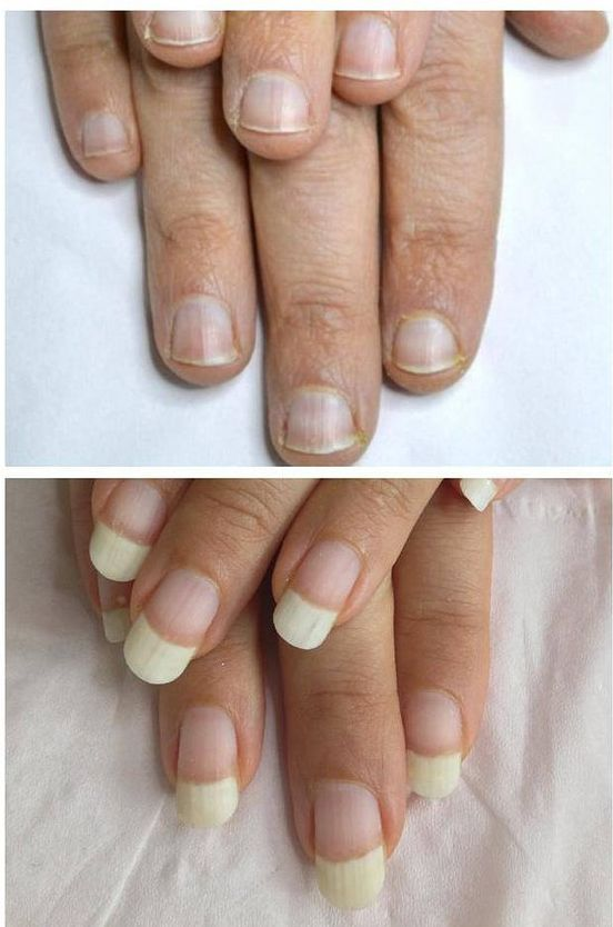 Tips And Tricks For Strong Natural Nails Strong Nails How To Grow Nails Strong Nails Diy
