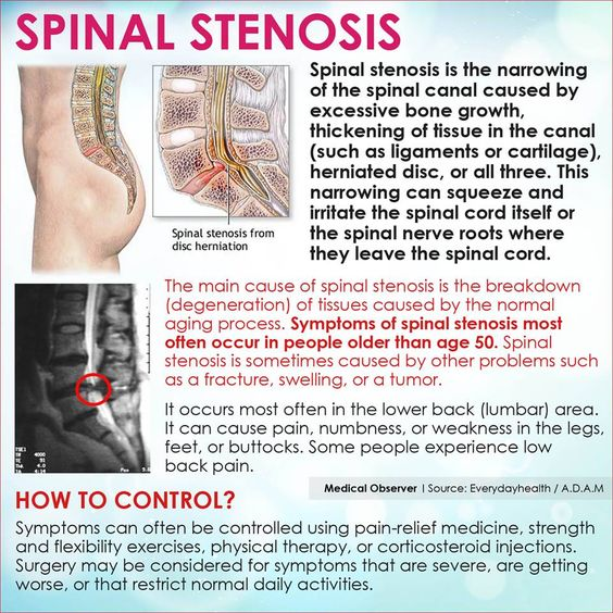 Cervical Stenosis hurts so badly