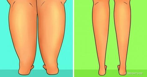 瘦小腿拉筋,水肿,萝卜腿,纤细