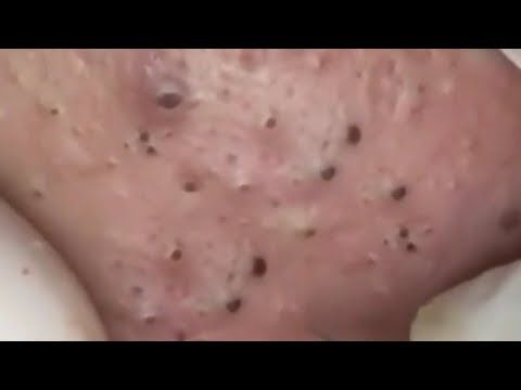 Satisfying Video Skin Care Beauty And Oddly Relaxing Music Sleep Part 135 Youtube Cravos Tira Cravos Espinhas The video, posted on ladbible, shows jacob acosta, 23, literally squeezing every single blackhead out of his nose in the span of two seconds. satisfying video skin care beauty and