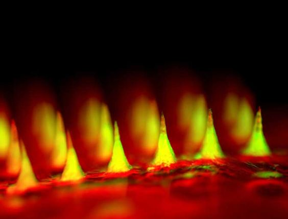 Top 10 images of 2015 | Insulin patch could spare diabetics from painful injections Science/AAAS | News