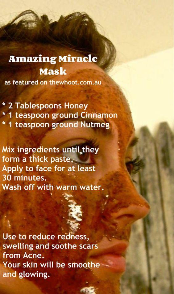 miracle mask / máscara milagre Você só precisa: 2 colheres de sopa de mel 1 colher de chá de terra canela 1 colher de chá de terra noz-moscada Soa quase como uma grande receita de férias, hein? O mel e noz-moscada ambos têm propriedades anti-inflamatórias que irá reduzir a vermelhidão e inchaço e pode ajudar a acalmar cicatrizes de acne. Eles também ajudam a prevenir a infecção. Canela e noz-moscada trabalho em conjunto para esfoliar a pele para que ele vai ser lisa e brilhante.