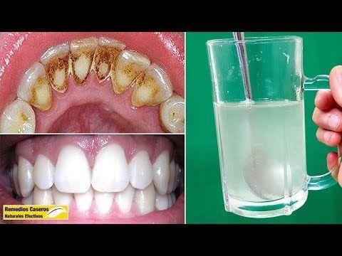 Eliminar La Placa Dental Y El Sarro Rápidamente Sólo Con Estos 3 Ingredientes Naturales Placas Dentales Productos De Higiene Bucal Blanqueamiento De Dientes