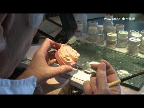 Frasen Und Bohren Teil 1 Aufbau Einer Vollkeramik Youtube Zahnarzt Frasen Zahne