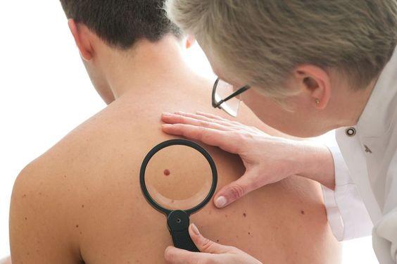Bijna iedereen heeft moedervlekken. Heel soms kan uit verdachte moedervlekken huidkanker (melanoom) ontstaan. Waar moet je op letten? De meeste mensen hebben er gemiddeld twintig: moedervlekken. Het zijn licht tot donker gekleurde vlekjes of op de...