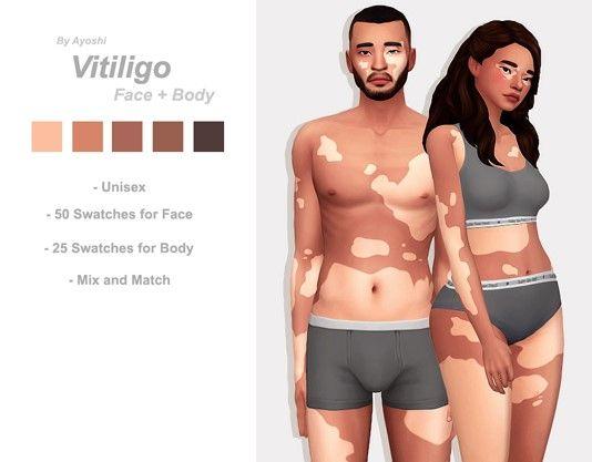 Sims 4 Vitiligo Skin Maxis Match Birthmarks The Sims 4 Skin Sims 4 Toddler Sims 4