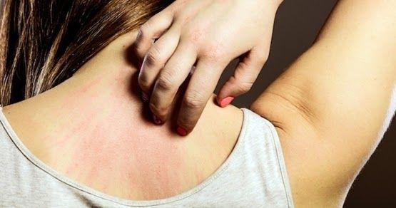 medicamentos para alergia ao sol
