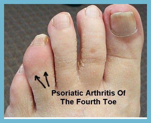 nail psoriasis nhs a hajon vörös foltok vannak és viszket