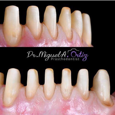 Drgsteven Dental Anatomy Dentistry Dental