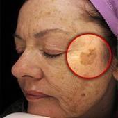 ¡Eliminación de las manchas oscuras! Rápido, sin cirugía, de modo natural!